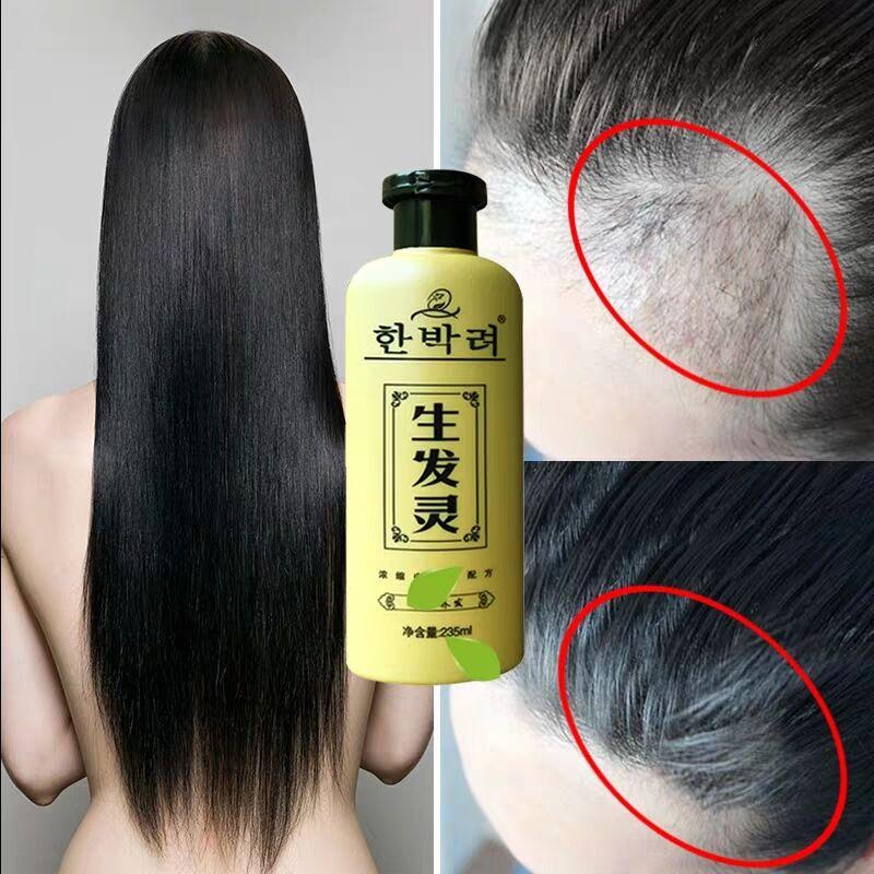 第3瓶0元 生姜洗发水防脱固发