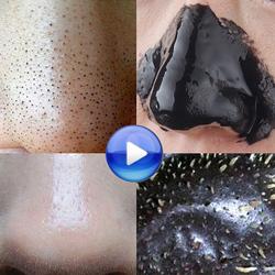 竹炭去黑头鼻膜撕拉式吸黑头贴除粉刺螨虫祛黑头收缩毛孔男女面膜