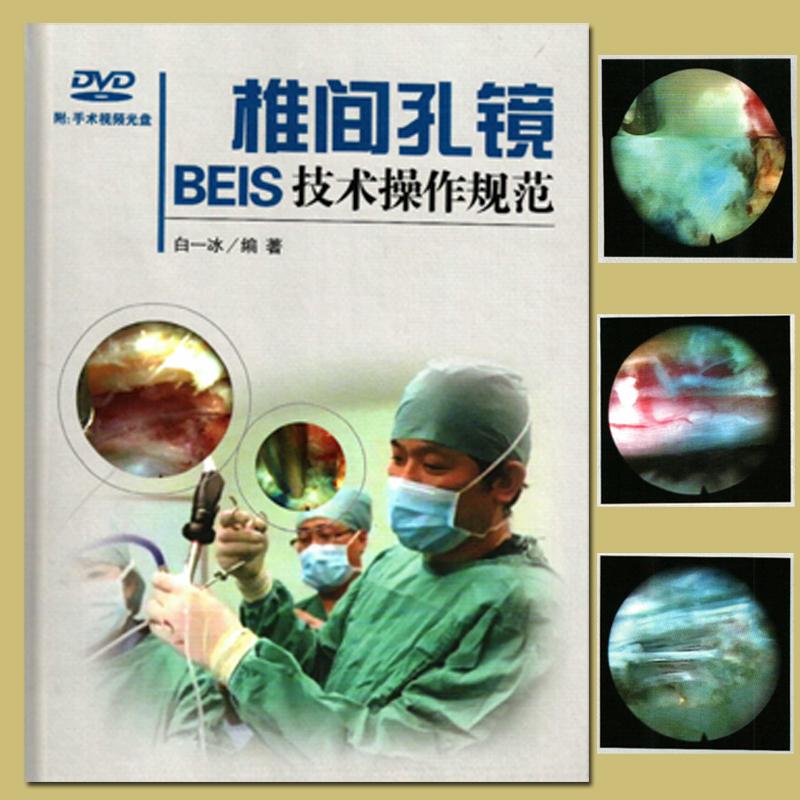 现货椎间孔镜BEIS技术操作规范-(含光盘) 白一冰 人民卫生出版社 9787117209977 诊断临床骨科治疗技术指导绝版书畅销热卖